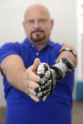 بازوی مصنوعی